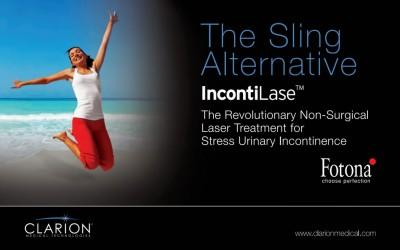 Kliničke indikacije za IntimaLase